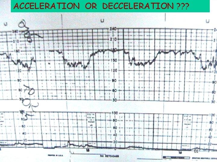 ACCELERATION OR DECCELERATION ? ? ? 81