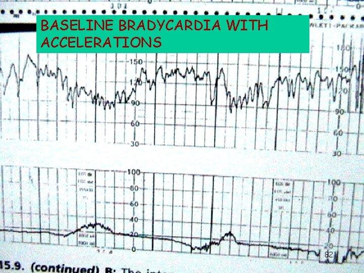 BASELINE BRADYCARDIA WITH ACCELERATIONS 82
