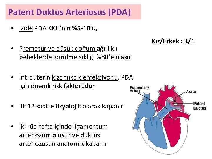 Patent Duktus Arteriosus (PDA) • İzole PDA KKH'nın %5 -10'u, • Prematür ve düşük