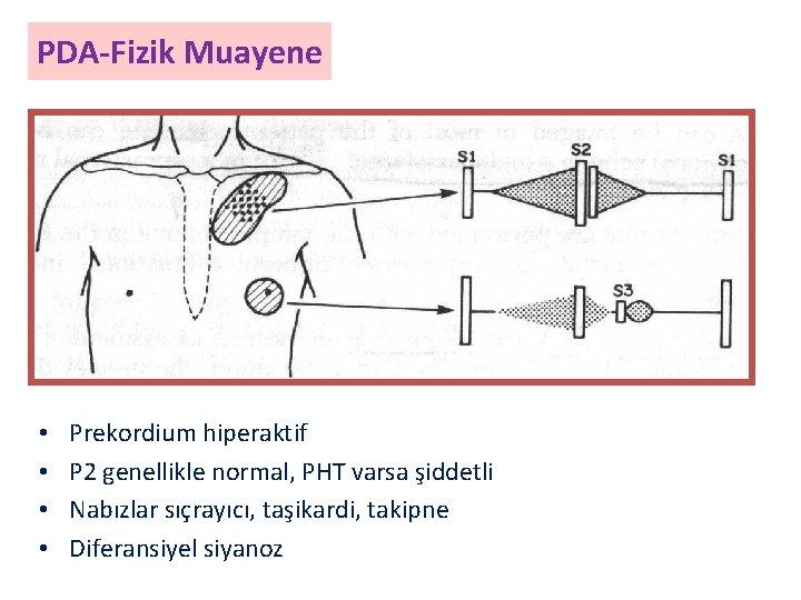 PDA-Fizik Muayene • • Prekordium hiperaktif P 2 genellikle normal, PHT varsa şiddetli Nabızlar