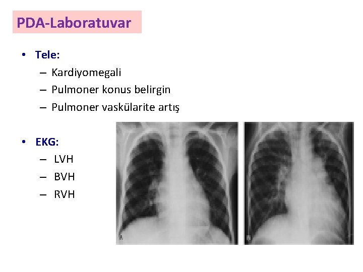 PDA-Laboratuvar • Tele: – Kardiyomegali – Pulmoner konus belirgin – Pulmoner vaskülarite artış •
