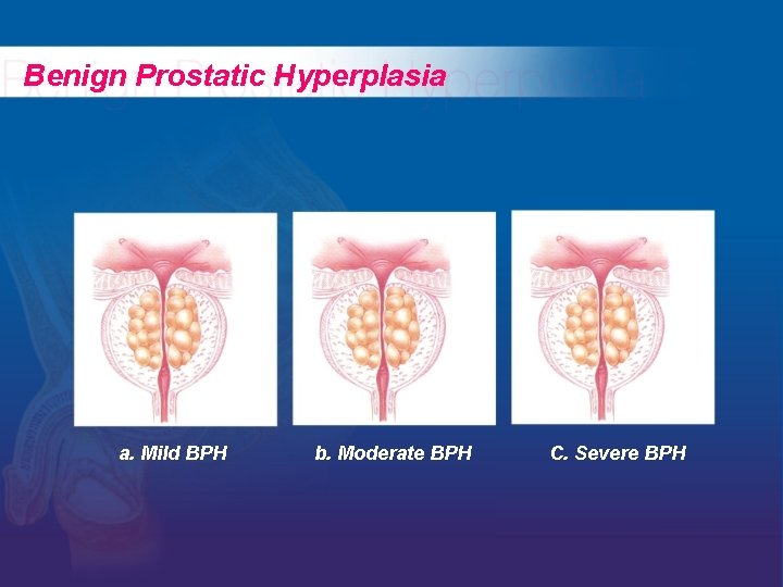 Benign Prostatic Hyperplasia a. Mild BPH b. Moderate BPH C. Severe BPH