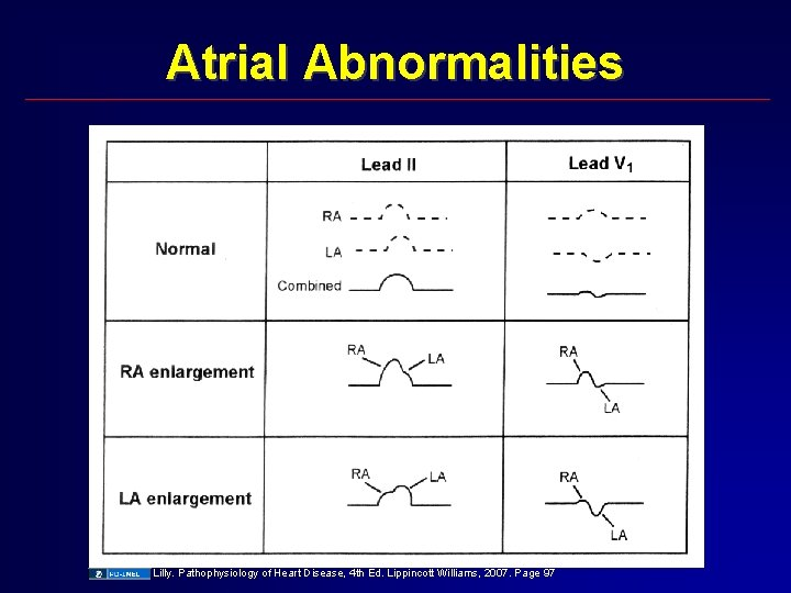 Atrial Abnormalities Lilly. Pathophysiology of Heart Disease, 4 th Ed. Lippincott Williams, 2007. Page