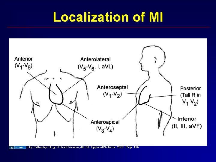 Localization of MI Lilly. Pathophysiology of Heart Disease, 4 th Ed. Lippincott Williams, 2007.