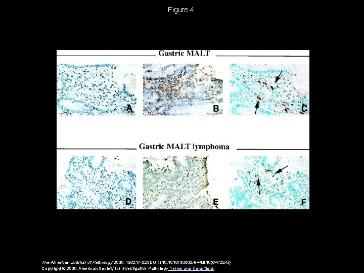 Figure 4 The American Journal of Pathology 2000 156217 -225 DOI: (10. 1016/S 0002