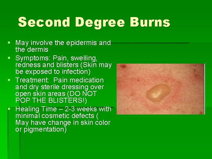 Second Degree Burns § May involve the epidermis and the dermis § Symptoms: Pain,