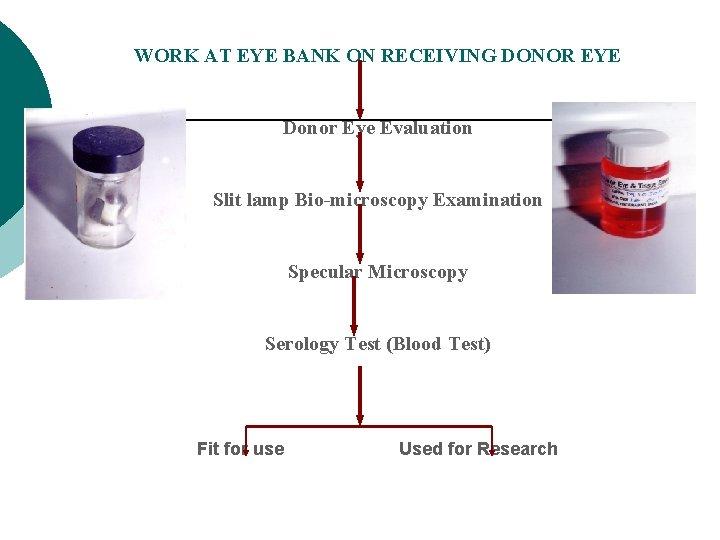 WORK AT EYE BANK ON RECEIVING DONOR EYE Donor Eye Evaluation Slit lamp Bio-microscopy