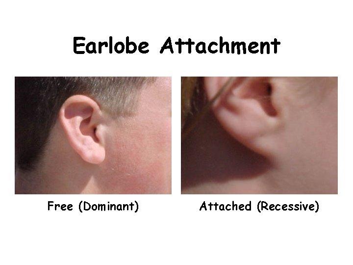 Earlobe Attachment Free (Dominant) Attached (Recessive)