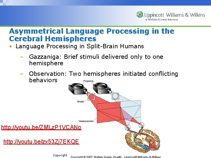 Asymmetrical Language Processing in the Cerebral Hemispheres • Language Processing in Split-Brain Humans –