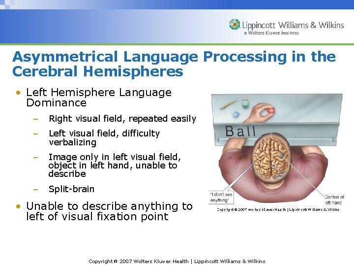 Asymmetrical Language Processing in the Cerebral Hemispheres • Left Hemisphere Language Dominance – Right