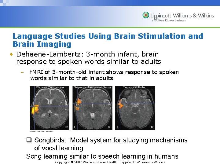 Language Studies Using Brain Stimulation and Brain Imaging • Dehaene-Lambertz: 3 -month infant, brain