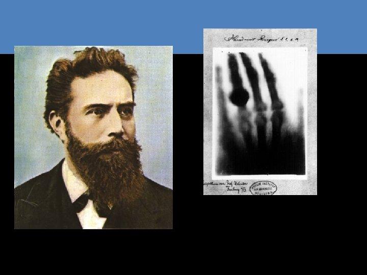 Wilhelm Conrad Röntgen Remscheid, 27 marzo 1845 – Monaco di Baviera, 10 febbraio 1923