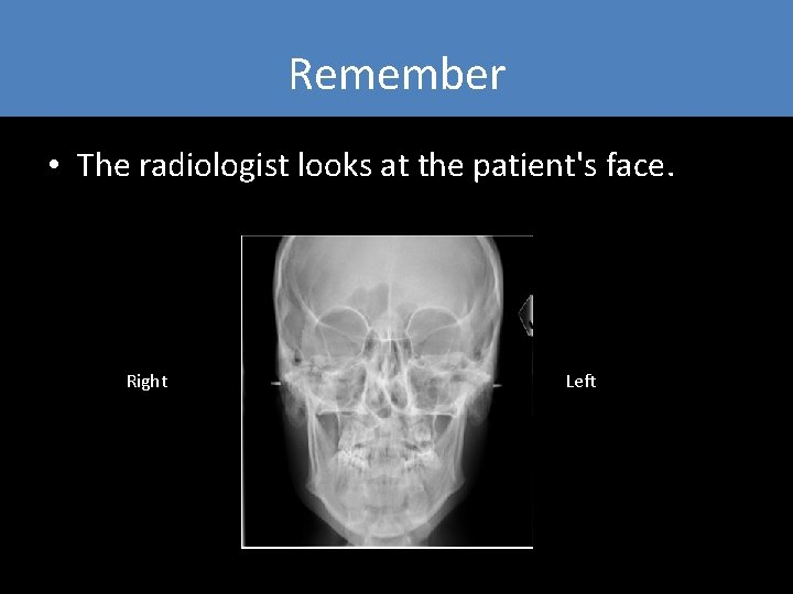 Remember • The radiologist looks at the patient's face. Right Left