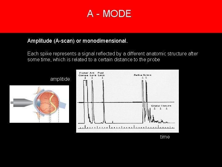 A - MODE 5. Creation of an image Amplitude (A-scan) or monodimensional. Each spike