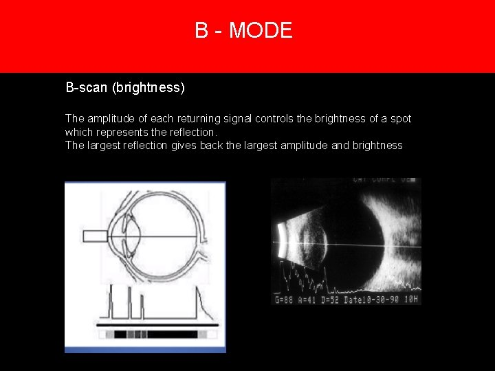 B - MODE 5. Creation of an image B-scan (brightness) The amplitude of each