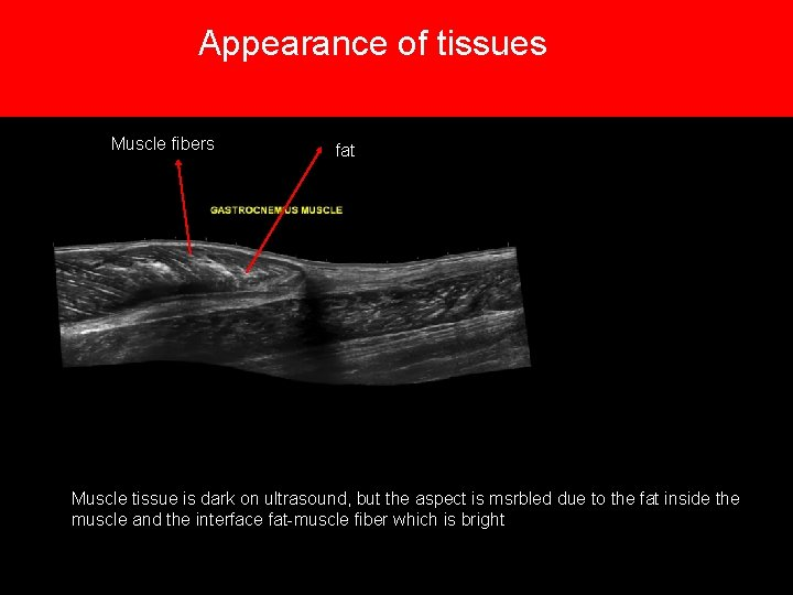 Appearance of tissues Muscle fibers fat Muscle tissue is dark on ultrasound, but the