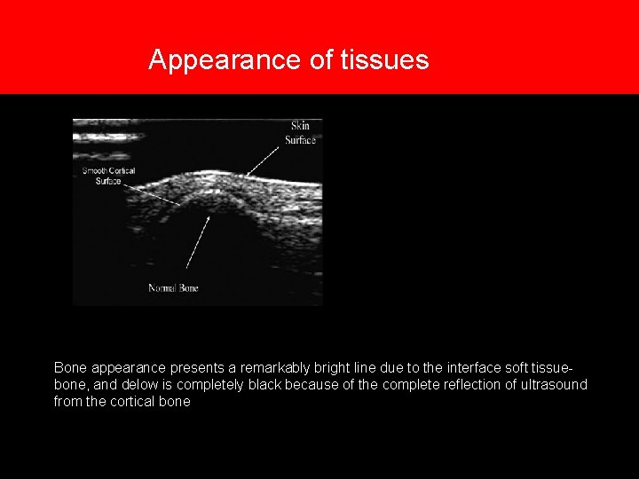 7. Appearance of tissues Bone appearance presents a remarkably bright line due to the