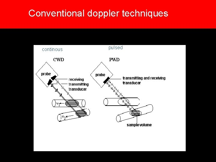 Conventional doppler techniques continous pulsed