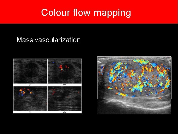 Colour flow mapping Mass vascularization