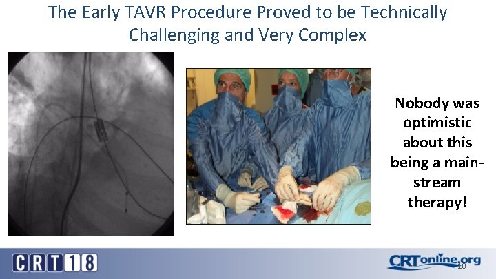 The Early TAVR Procedure Proved to be Technically Challenging and Very Complex Nobody was