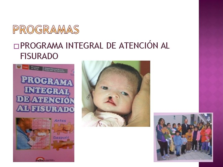 � PROGRAMA FISURADO INTEGRAL DE ATENCIÓN AL