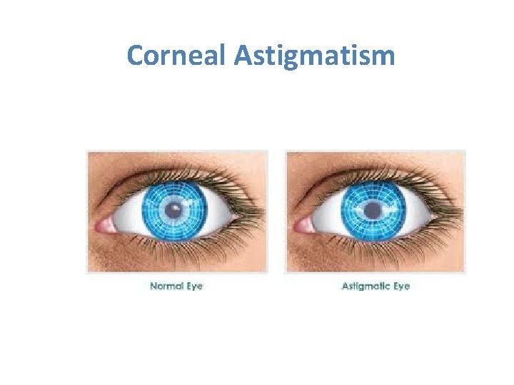 Corneal Astigmatism