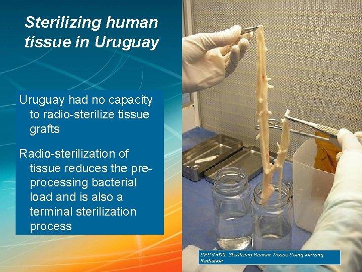 Sterilizing human tissue in Uruguay had no capacity to radio-sterilize tissue grafts Radio-sterilization of