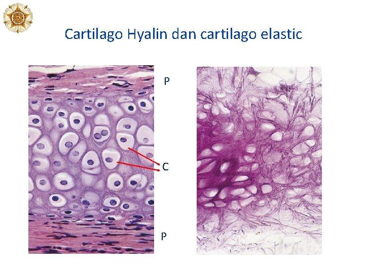 Cartilago Hyalin dan cartilago elastic P C P
