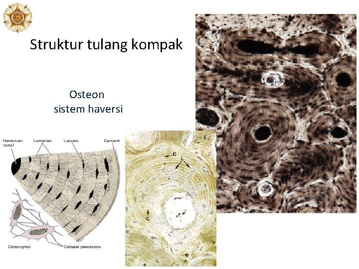 Struktur tulang kompak Osteon sistem haversi
