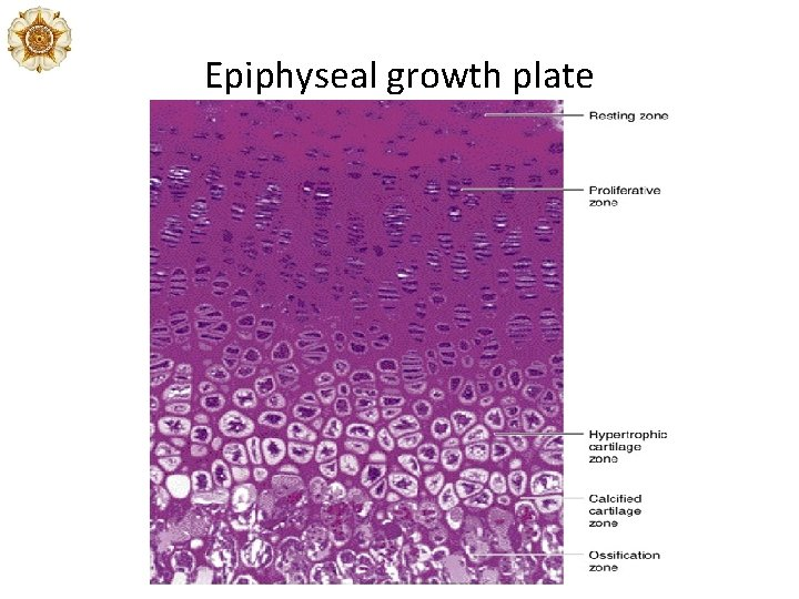 Epiphyseal growth plate