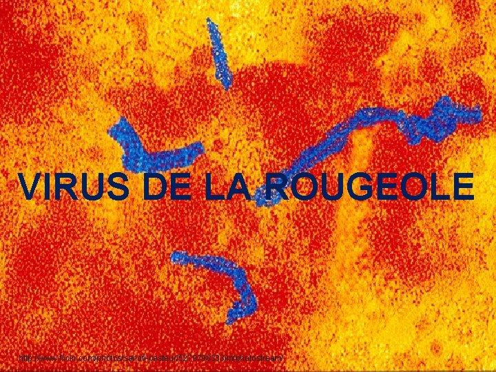 VIRUS DE LA ROUGEOLE http: //www. flickr. com/photos/sanofi-pasteur/5279798333/in/photostream/