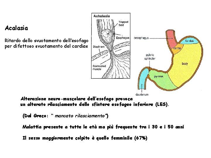 Acalasia Ritardo dello svuotamento dell'esofago per difettoso svuotamento del cardias Alterazione neuro-muscolare dell'esofago provoca