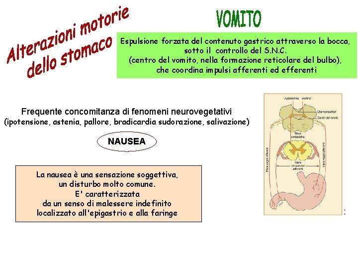 Espulsione forzata del contenuto gastrico attraverso la bocca, sotto il controllo del S. N.