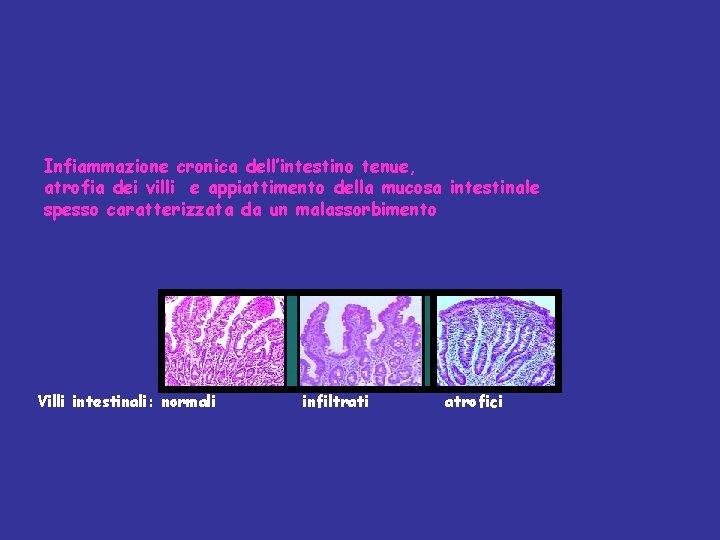 Infiammazione cronica dell'intestino tenue, atrofia dei villi e appiattimento della mucosa intestinale spesso caratterizzata