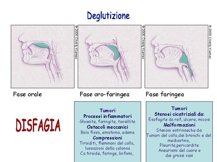 Fase orale Fase oro-faringea Tumori Processi infiammatori Glossite, faringite, tonsillite Ostacoli meccanici Bolo fisso,