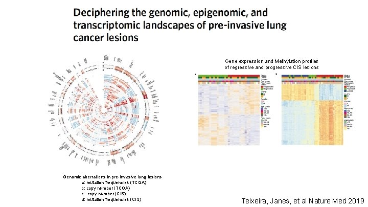 Gene expression and Methylation profiles of regressive and progressive CIS lesions Genomic aberrations in