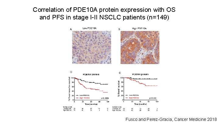 Correlation of PDE 10 A protein expression with OS and PFS in stage I-II