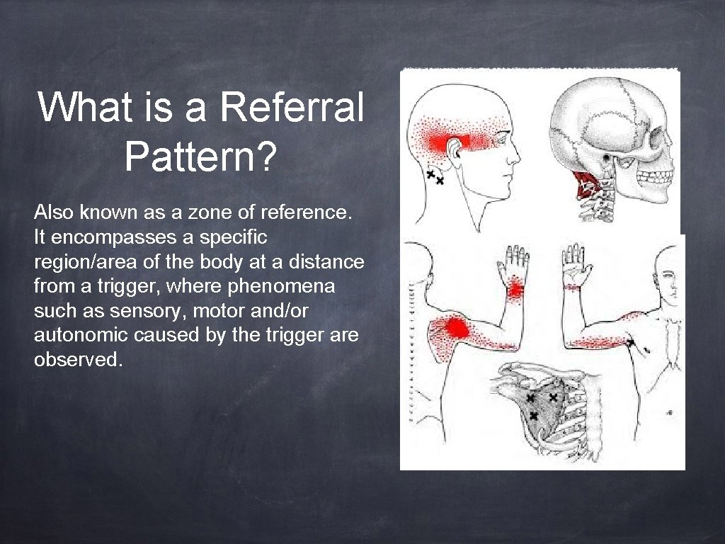 What is a Referral Pattern? Also known as a zone of reference. It encompasses
