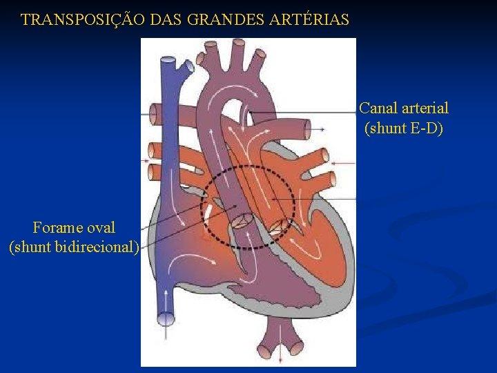 TRANSPOSIÇÃO DAS GRANDES ARTÉRIAS Canal arterial (shunt E-D) Forame oval (shunt bidirecional)
