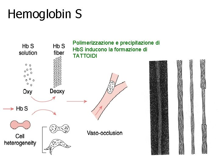 Hemoglobin S Polimerizzazione e precipitazione di Hb. S inducono la formazione di TATTOIDI