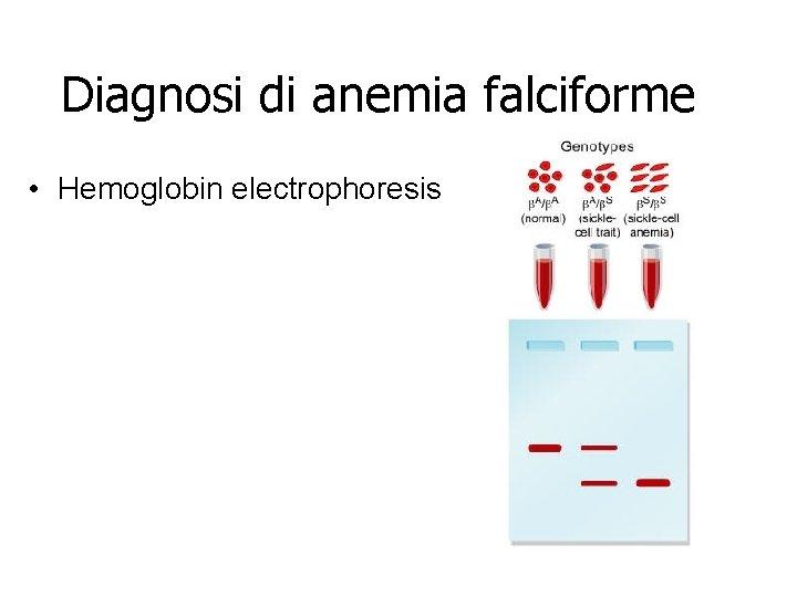 Diagnosi di anemia falciforme • Hemoglobin electrophoresis