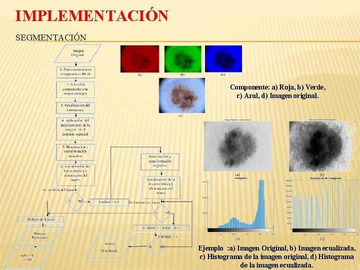 IMPLEMENTACIÓN SEGMENTACIÓN Componente: a) Roja, b) Verde, c) Azul, d) Imagen original. Ejemplo :