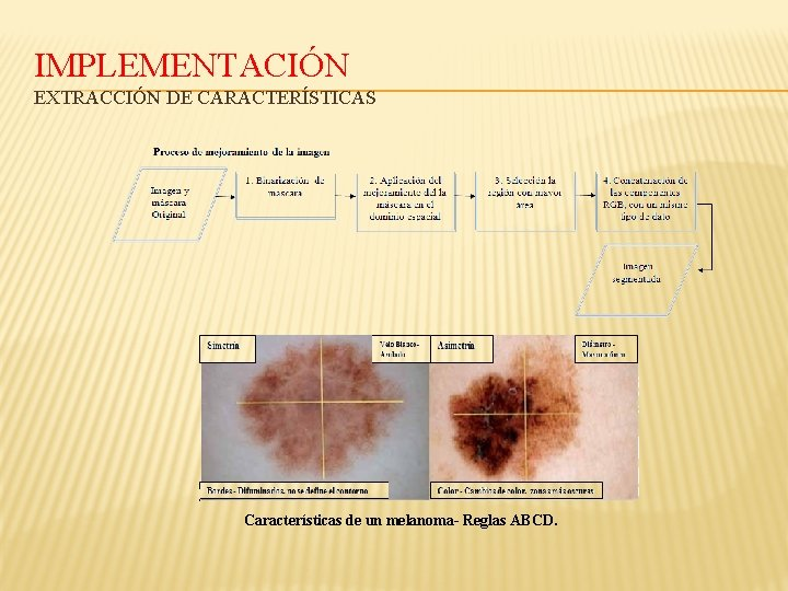 IMPLEMENTACIÓN EXTRACCIÓN DE CARACTERÍSTICAS Características de un melanoma- Reglas ABCD.