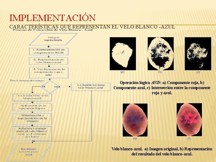 IMPLEMENTACIÓN CARACTERÍSTICAS QUE REPRESENTAN EL VELO BLANCO -AZUL Operación lógica AND: a) Componente roja,