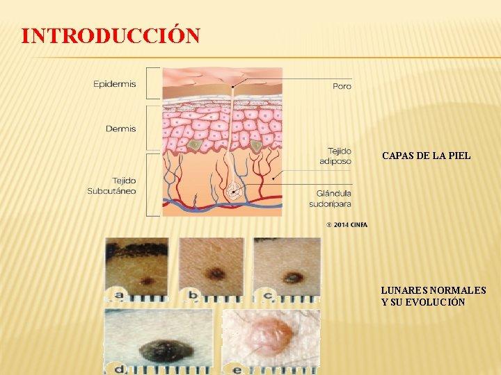 INTRODUCCIÓN CAPAS DE LA PIEL LUNARES NORMALES Y SU EVOLUCIÓN