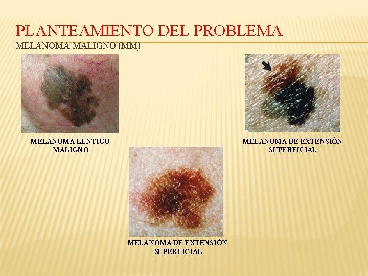 PLANTEAMIENTO DEL PROBLEMA MELANOMA MALIGNO (MM) MELANOMA LENTIGO MALIGNO MELANOMA DE EXTENSIÓN SUPERFICIAL