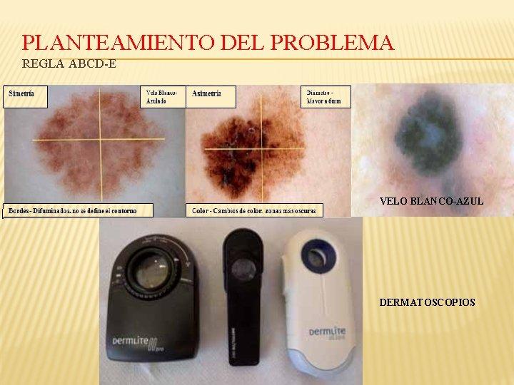 PLANTEAMIENTO DEL PROBLEMA REGLA ABCD-E VELO BLANCO-AZUL DERMATOSCOPIOS