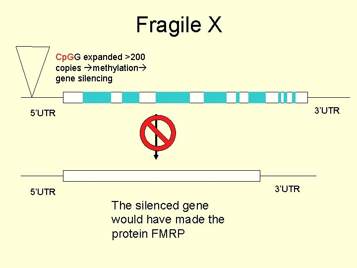 Fragile X Cp. GG expanded >200 copies methylation gene silencing 3'UTR 5'UTR The silenced
