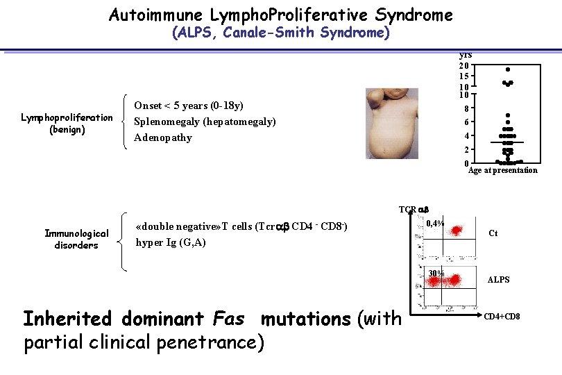 Autoimmune Lympho. Proliferative Syndrome (ALPS, Canale-Smith Syndrome) yrs Lymphoproliferation (benign) 20 15 10 10