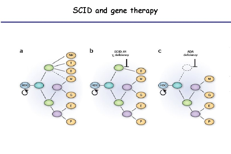 SCID and gene therapy
